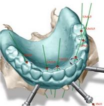 Implantáció-sablonnal